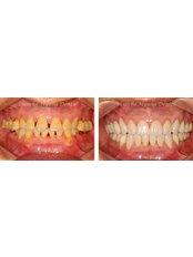 Cosmetic Dentist Consultation - Blanche Hyung Dental
