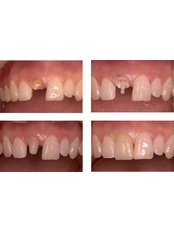 Root canals - Blanche Hyung Dental