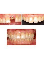 Single Implant - Blanche Hyung Dental