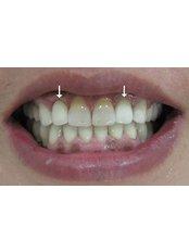 Immediate Implant Placement - U.S. Dental