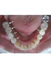 Dental Implants - U.S. Dental