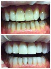 E Max Veneers - Centro Clínico de Especialidades Odontológicas