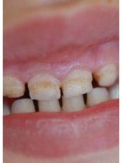 Childrens Dentistry - Clinica dental Finestrat