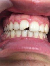 Fillings - Clinica dental Finestrat
