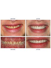 Porcelain Veneers - The Riviera British Dental Clinic