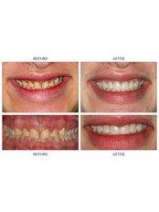 Veneers - The Riviera British Dental Clinic