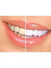Teeth Whitening - The Riviera British Dental Clinic