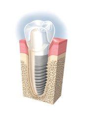 Implant Dentist Consultation - Bordon Clinic