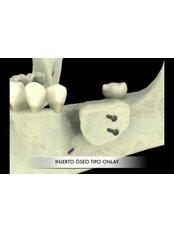 Bone Graft - Bordon Clinic