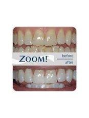 Zoom! Teeth Whitening - Bordon Clinic