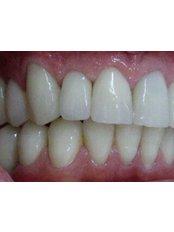 Dental Implants - Dental Marbella