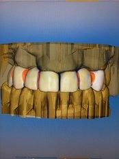 Clínica Dental Cots - Carlos Cervera 12, Bajo, Valencia, Valencia, 46006,
