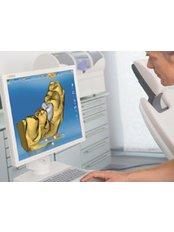 CEREC Dental Restorations - Clínica Dental Cots