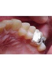 Temporary Filling - Madonna Hospital Limited - Dental Clinic