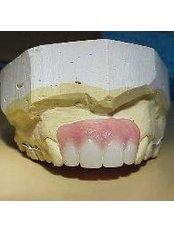 MENO BANDIA Acrylic Dentures - Madonna Hospital Limited - Dental Clinic