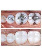 White Filling - Madonna Hospital Limited - Dental Clinic