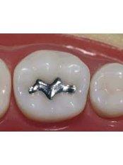 Amalgam Filling - Madonna Hospital Limited - Dental Clinic
