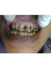 FINA Before Composite Veneers (Upper anteriors) - Courtesy of Dr Dennis Twaakyondo - Madonna Hospital Limited - Dental Clinic