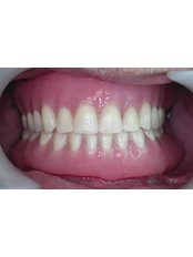 Removable Dentures (acrylic/ metal plate with acrylic teeth) - BFC Dental