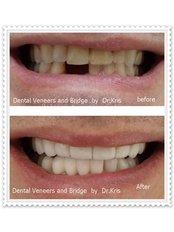 Dental Bridges - Pattaya Smile Dental Clinic - Banglamung