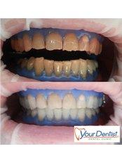 Teeth Whitening - Your Dentist