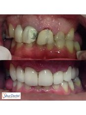 Dental Bridges - Your Dentist