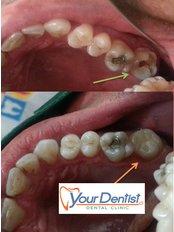 Fillings - Your Dentist