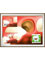Socket Augmentation - Dr.Tangmo Dental Clinic
