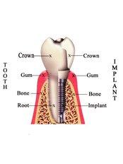 Dental Implant - Dr.Tangmo Dental Clinic