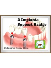 Implant Bridge - Dr.Tangmo Dental Clinic