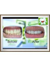 Teeth Whitening - Dr.Tangmo Dental Clinic