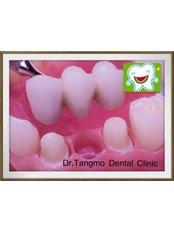Dental Bridges - Dr.Tangmo Dental Clinic
