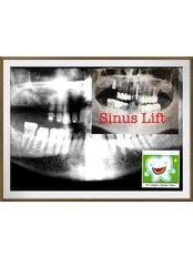 Sinus Lift - Dr.Tangmo Dental Clinic