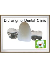 Maryland Bridge - Dr.Tangmo Dental Clinic