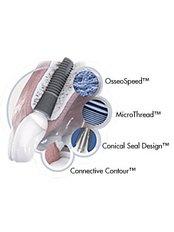 Astra Tech Dental Implant - Dr.Tangmo Dental Clinic