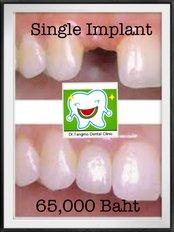 Single Implant  - Dr.Tangmo Dental Clinic