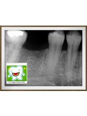 Intra-oral X-Ray - Dr.Tangmo Dental Clinic