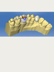 Dr Battikh Jameleddine Dental Center - medica center ,119 av lére nouvelle,ennasr 2, cabinet c4 2éme étage tel 70826609 www.docteurdentiste.com, Ariana, Tunis, 2094,