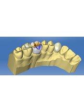 Dr Battikh Jameleddine Dental Center - medica center ,119 av lére nouvelle,ennasr 2, cabinet c4 2éme étage tel 70826609 www.docteurdentiste.com, Ariana, Tunis, 2094,  0