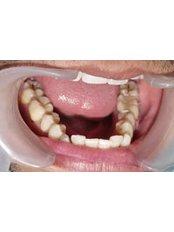 Dentist Consultation - Tunis Dental Clinic
