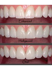 Cosmetic Dentist Consultation - Ankara Denthouse (Ankara Dişevi)