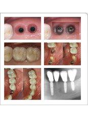 Dental Implants - Ankara Denthouse (Ankara Dişevi)