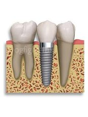 Dental Implants - Alanya Dental Center