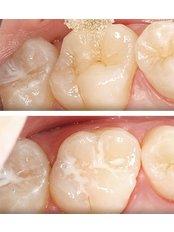 Dental Sealant - Alanya Dental Center