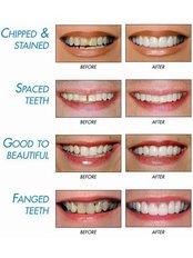 Cosmetic Dentist Consultation - Alanya Dental Center