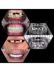 Zahnimplantate - Summer Dental