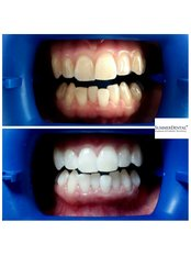 Zoom! Zahnaufhellung - Summer Dental