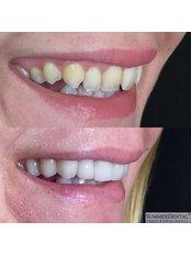 Keramik-Veneers - Summer Dental