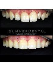 Bonding - Summer Dental