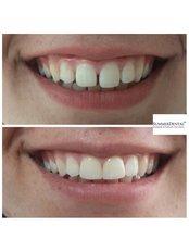 Veneers - Summer Dental